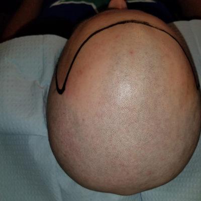 ScalpMicropigmentation Before